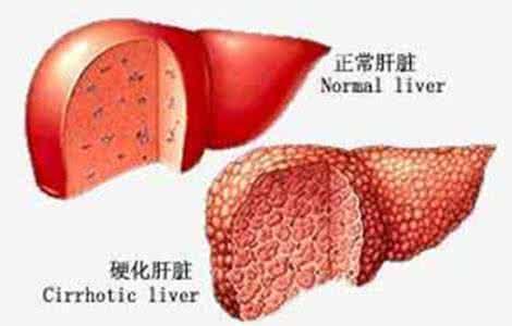 肝硬化的早期症状有哪些?
